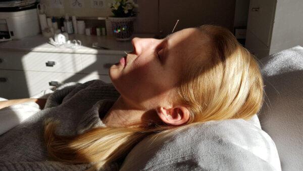 Akupunktur og zoneterapi