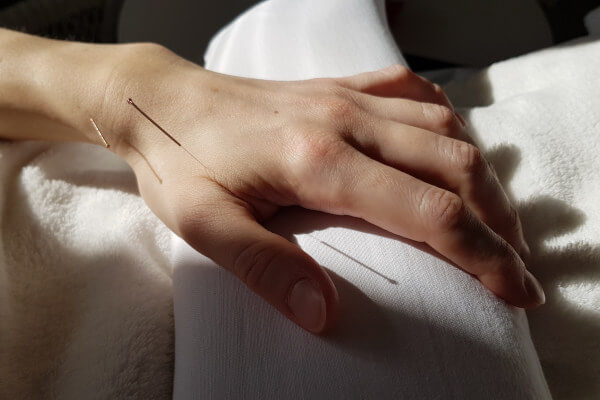Mette BL Thomsen akupunktur