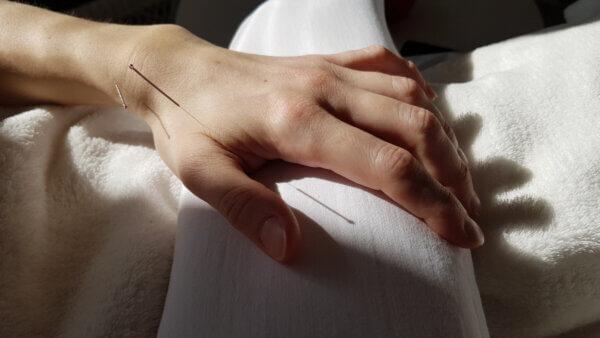 Akupunktur klinikken
